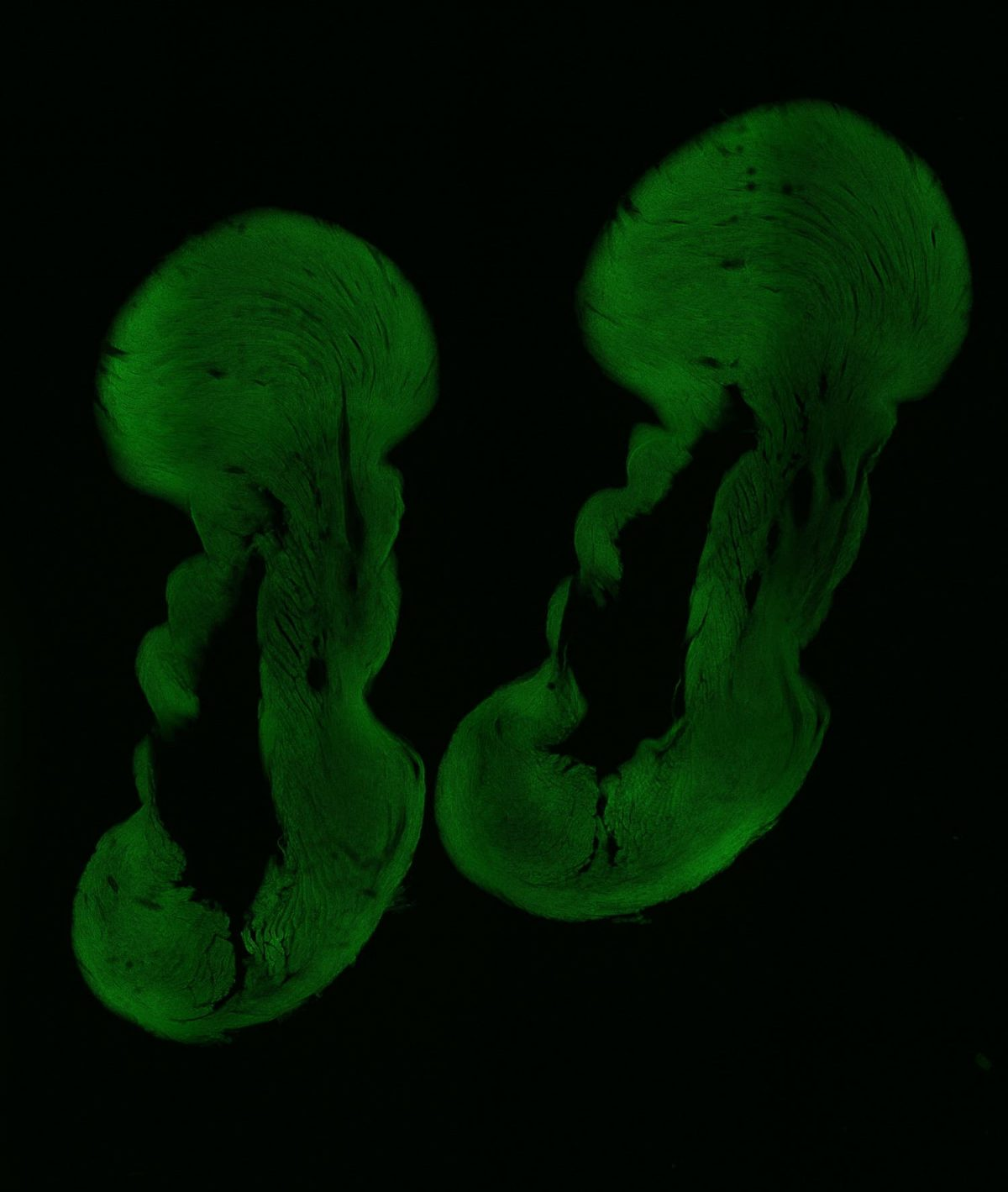 Erzsébet Gregori: Embryos